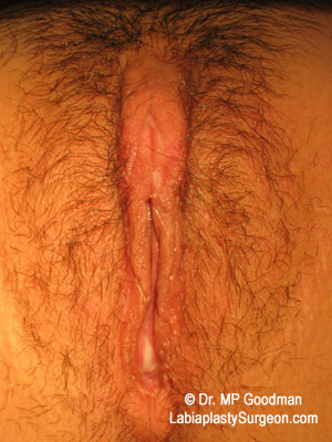 After-Labiaplasty Clitoral HoodReduction Before & 1 Month After 16 year old